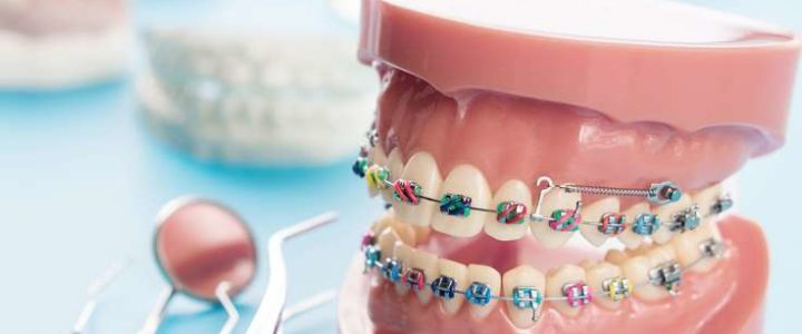 Is Orthodontic Treatment Permissible?